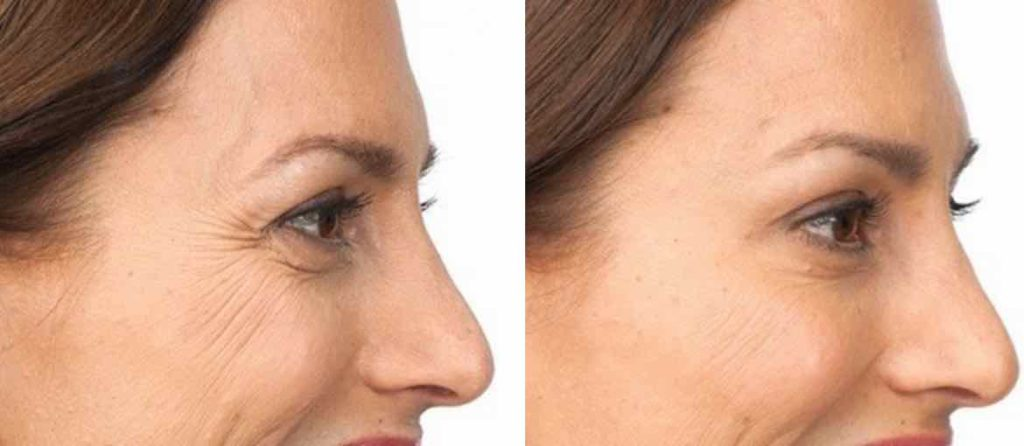 Picture of a Botox procedure alternative