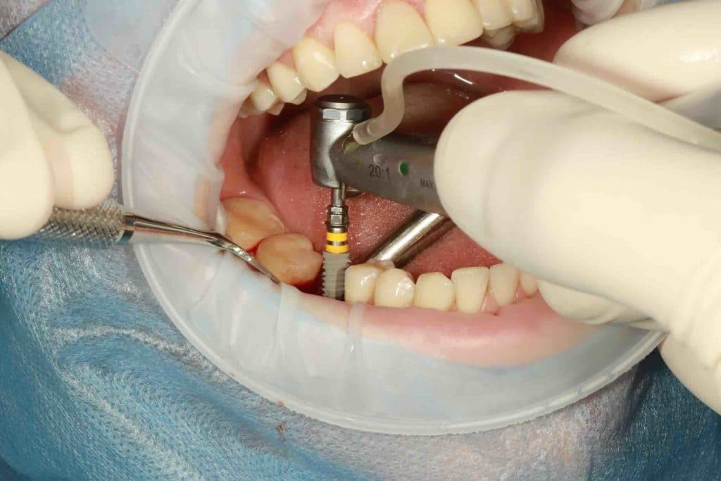 Picture of a dental implant being installed
