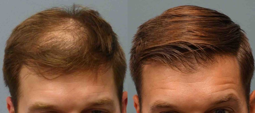 Before and after picture of a hair transplant