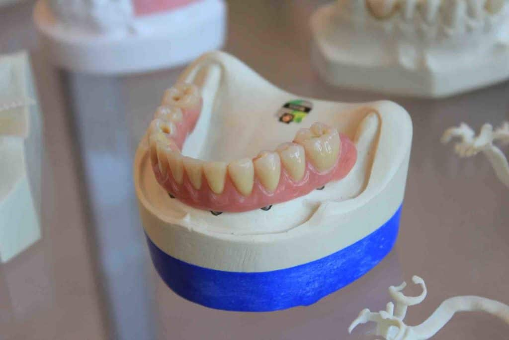 Picture of a teeth moulding
